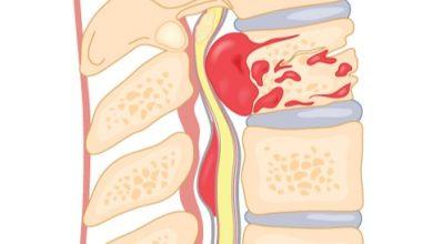 Photo of أعراض ضغط فقرات الرقبة على الأعصاب